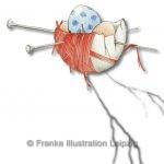 Zeichnungen und Illustrationen Jens Thomas Franke - Das Kuckuksei